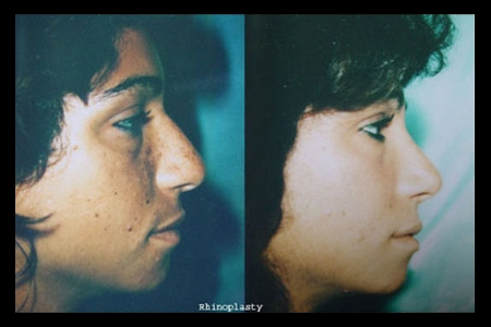 surgical-rhinoplasty