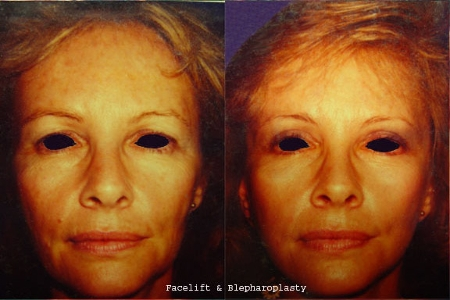 blepharoplasty and facelift